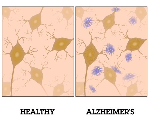 ALZHEIMER AND MARIJUANA