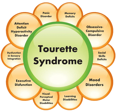 the clinical description of tourette syndrome Tourette syndrome (ts), also known as tourette's disorder, is a neurodevelopmental disorder characterized by multiple motor tics and at least one vocal tic present for greater than one year.