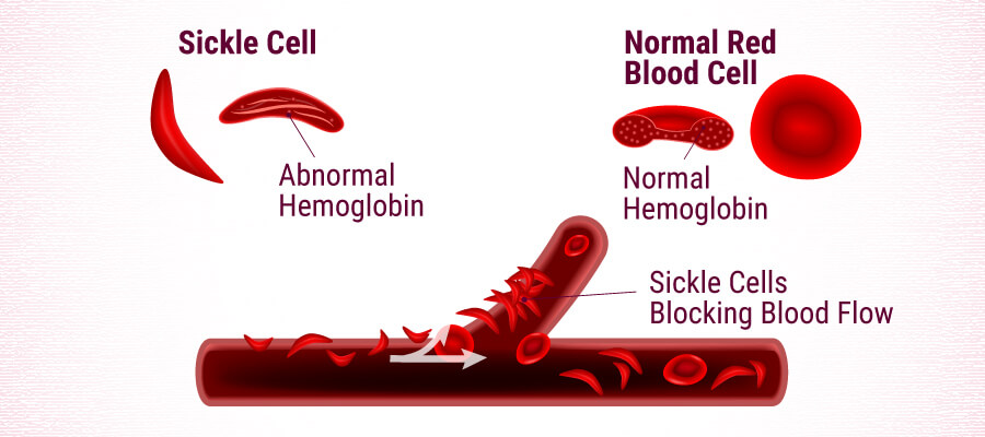 Sickle Cell vs Normal Red Blood Cell