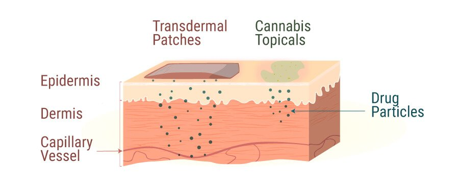 Transdermal Patches vs Cannabis Topicals