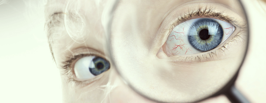 red eyes cannabis hypertension