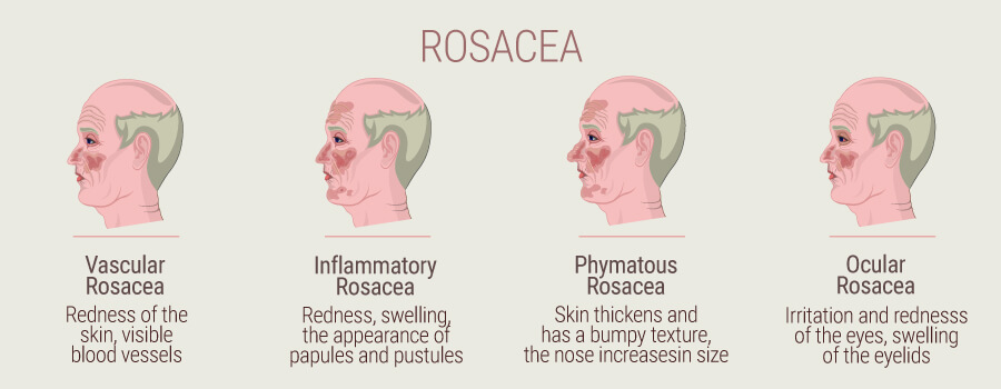 How Cannabis And Hemp Can Reduce Symptoms Of Rosacea - RQS Blog