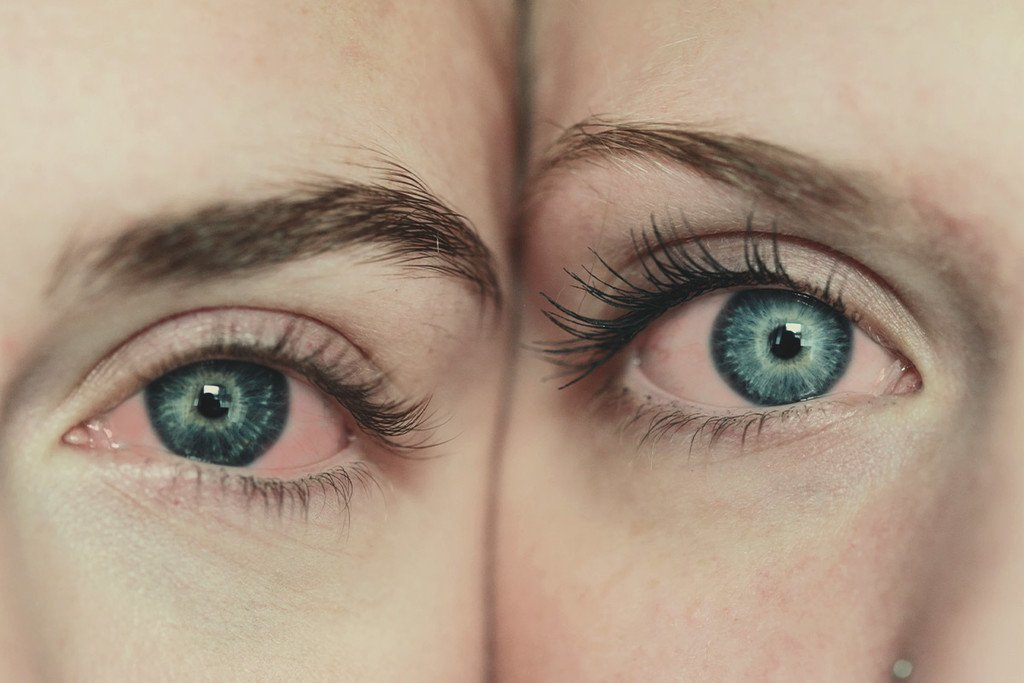 Cannabis Can Cause Eye Reddening: Do Something About it?