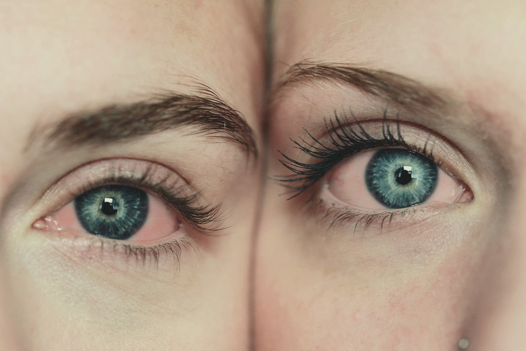 Why Cannabis Causes Red Eyes