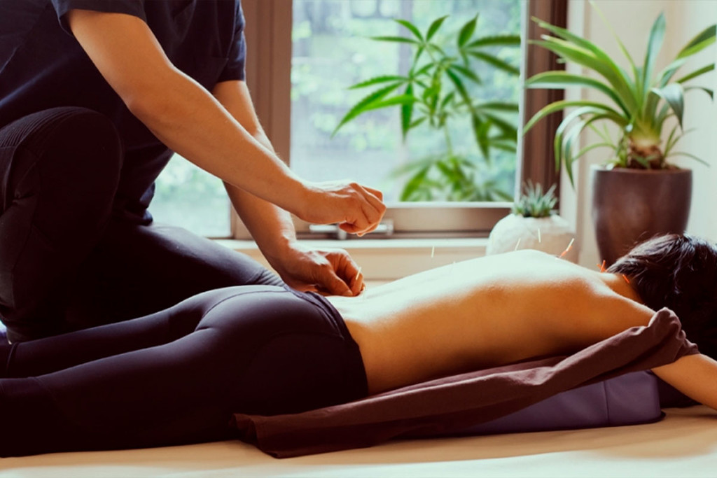 Cannabis And Acupuncture: A Double Boost For The Endocannabinoid System